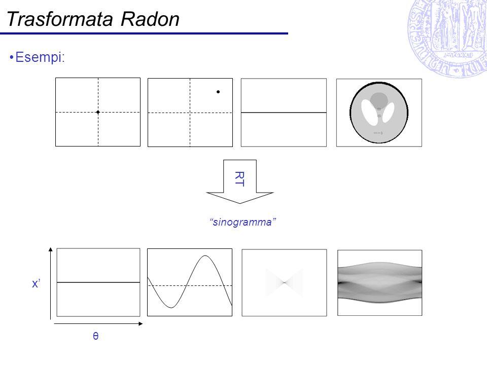 Teorema della sezione centrale La trasformata di Fourier della proiezione p (trasformata di Radon) di f(x,y) dato θ, è pari alla trasformata di Fourier 2D di f(x,y) valutata su una retta passante per lorigine delle frequenze con angolo θ.