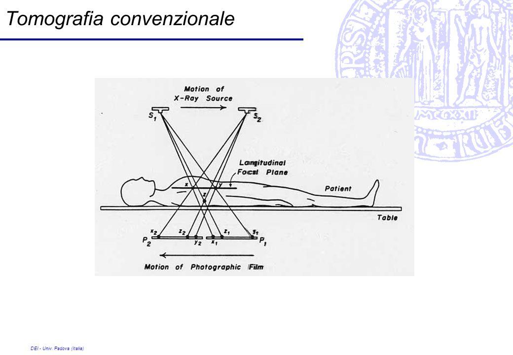 DEI - Univ. Padova (Italia) Tomografia convenzionale