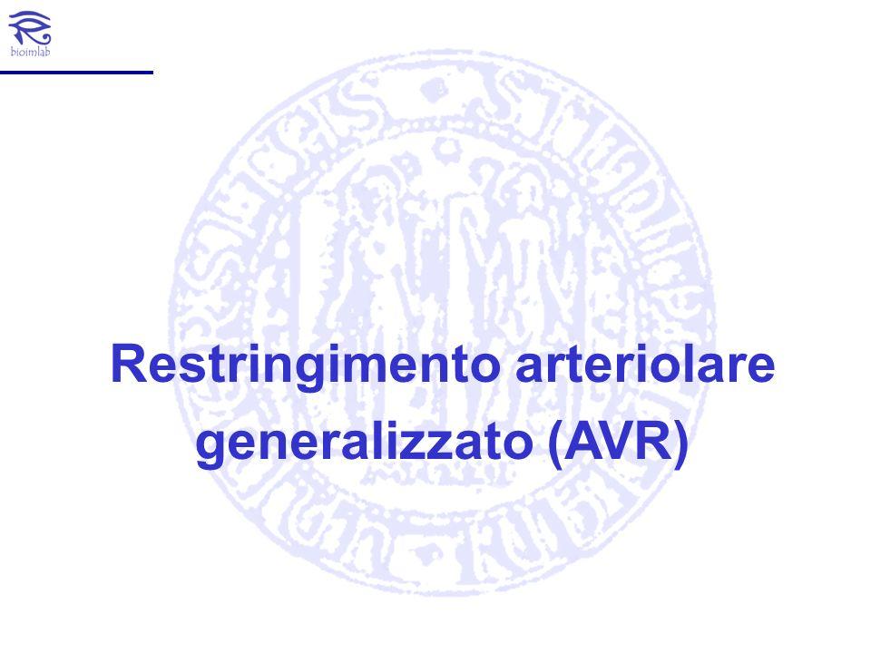Perchè i diametri dei vasi Si può valutare tale stato attraverso il calcolo del Restringimento Arteriolare Generalizzato espresso dall AVR (Arteriolar-to-Venular diameter Ratio).