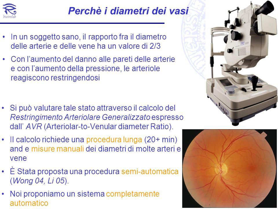 Perchè i diametri dei vasi Si può valutare tale stato attraverso il calcolo del Restringimento Arteriolare Generalizzato espresso dall AVR (Arteriolar
