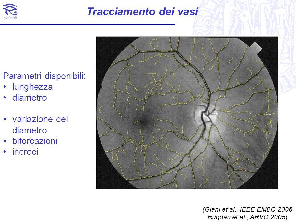 Identificazione della ROI AVR è calcolato considerando i diametri dei vasi un una specifica regione In questa regione i vasi vengono analizzati per identificare i loro rapporti relativi ed il loro tipo (arteria o vena)