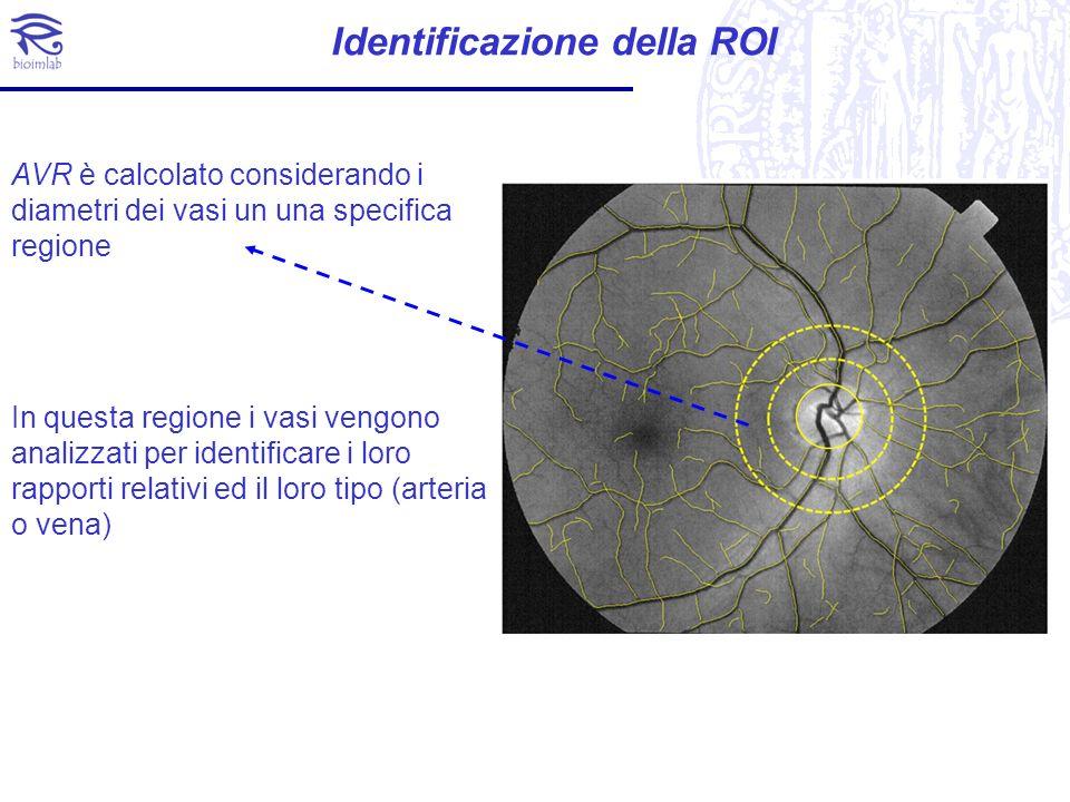 Calcolo dellAVR Dai diametri stiatei delle arteriole e venule nella ROI, si riassumono I dati in due valori CRAE (Central Retinal Artery Equivalent) CRVE (Central Retinal Vein Equivalent) Ed infine si ottiene (Tramontan et al., IEEE EMBC,2008)