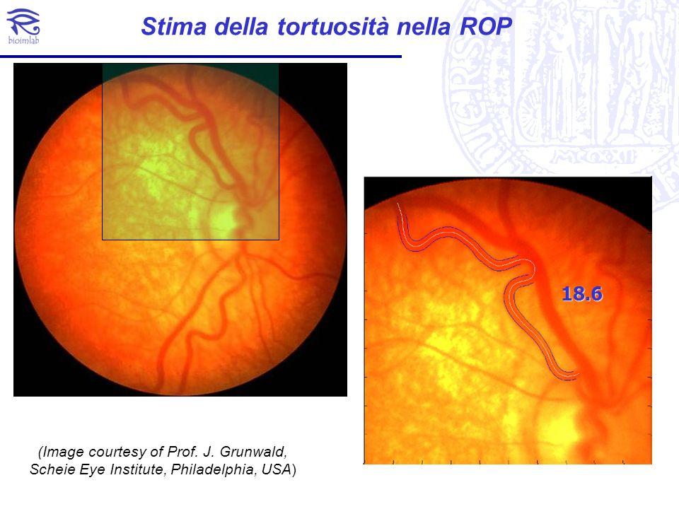 18.6 Stima della tortuosità nella ROP (Image courtesy of Prof. J. Grunwald, Scheie Eye Institute, Philadelphia, USA)