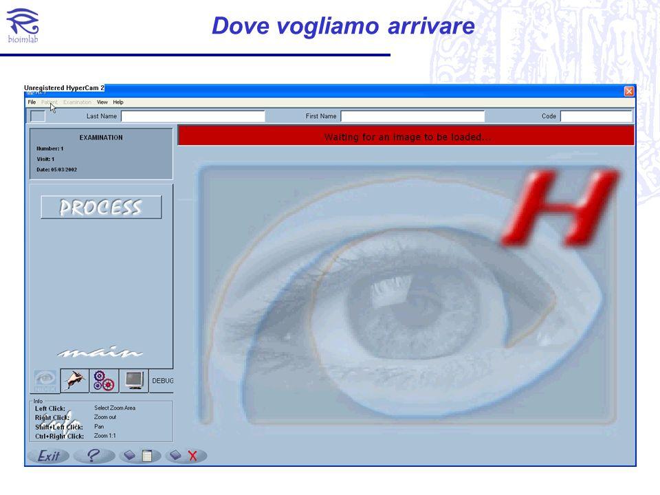 Un prototipo di sistema per la diagnosi e valutazione automatica della retinopatia ipertensiva è stato sviluppato nel 2002 per Nidek Technologies (Italy).