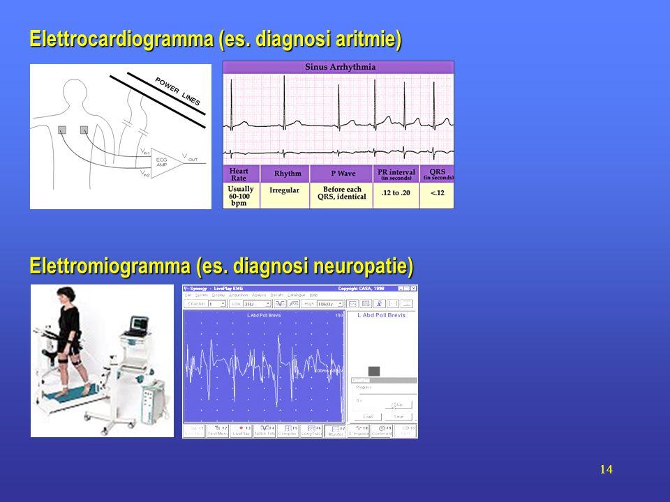 14 Elettromiogramma (es. diagnosi neuropatie) Elettrocardiogramma (es. diagnosi aritmie)