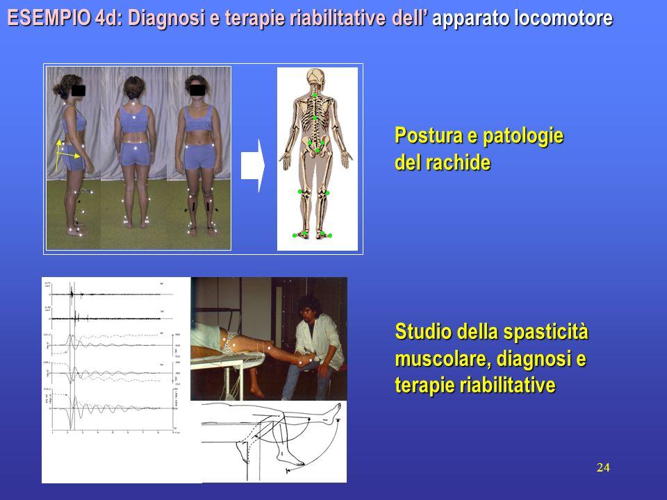 24 ESEMPIO 4d: Diagnosi e terapie riabilitative dell apparato locomotore Postura e patologie del rachide Studio della spasticità muscolare, diagnosi e