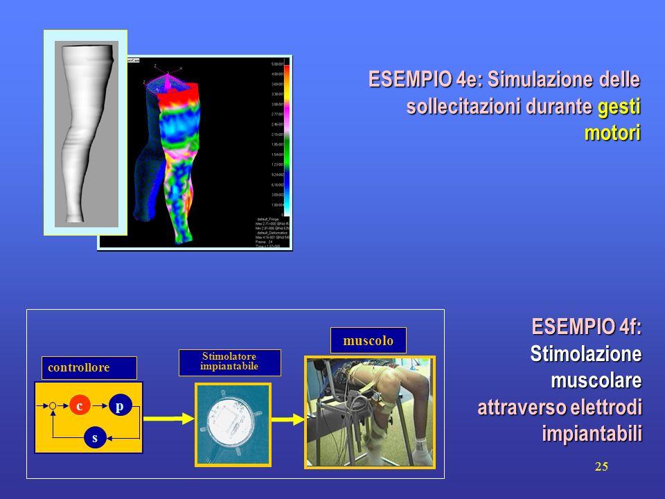 25 muscolo Stimolatore impiantabile controllore c s p ESEMPIO 4f: Stimolazione muscolare attraverso elettrodi impiantabili ESEMPIO 4e: Simulazione del