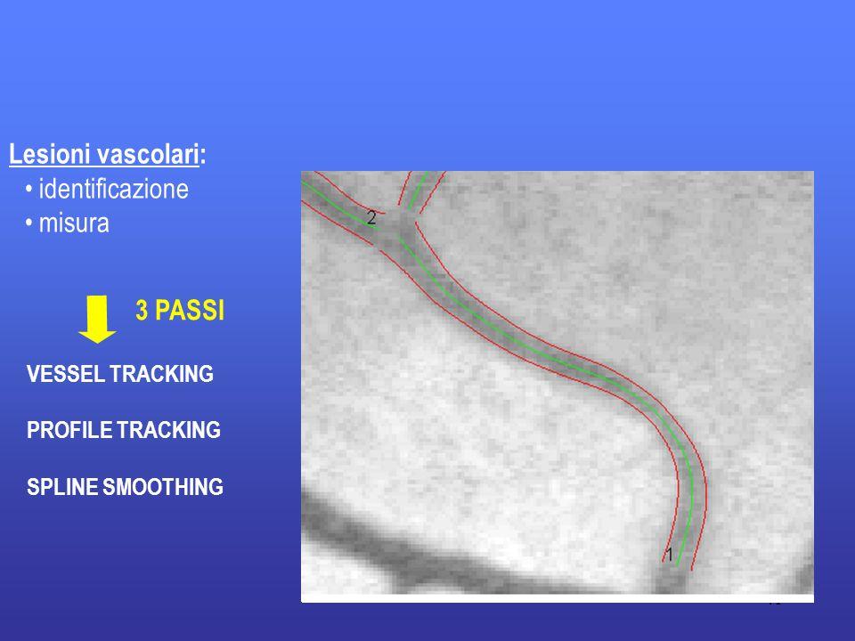 41 Lesioni vascolari: identificazione misura VESSEL TRACKING PROFILE TRACKING SPLINE SMOOTHING 3 PASSI