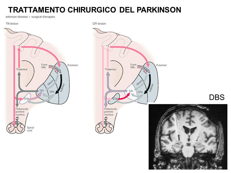 TRATTAMENTO CHIRURGICO DEL PARKINSON DBS