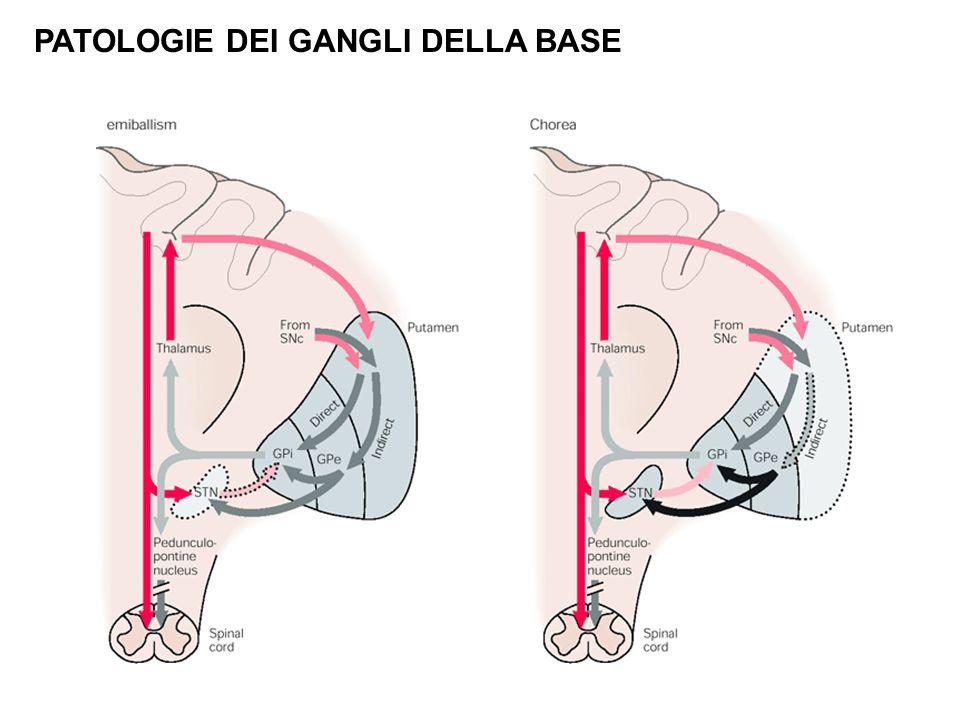 PATOLOGIE DEI GANGLI DELLA BASE Body_ID: F023018