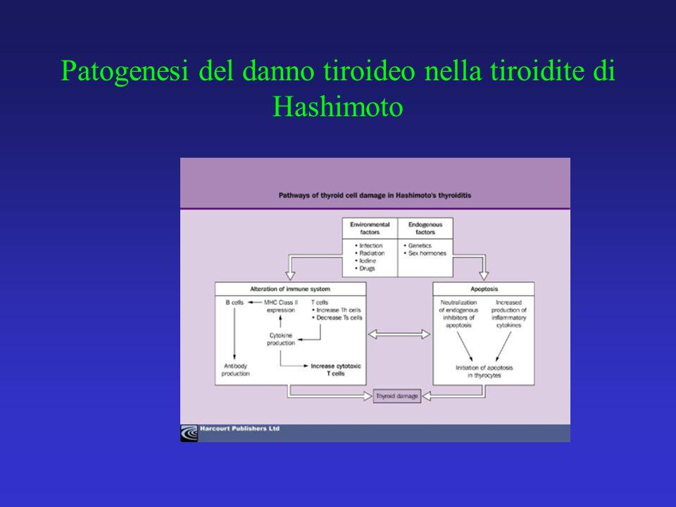 Patogenesi del danno tiroideo nella tiroidite di Hashimoto