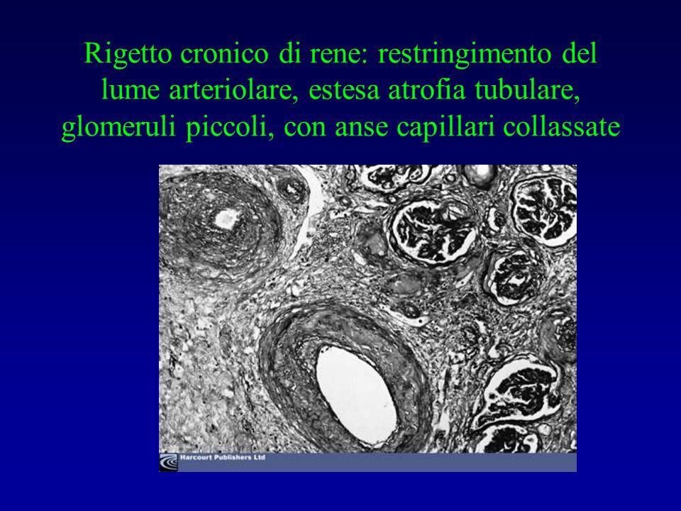 Rigetto cronico di rene: restringimento del lume arteriolare, estesa atrofia tubulare, glomeruli piccoli, con anse capillari collassate