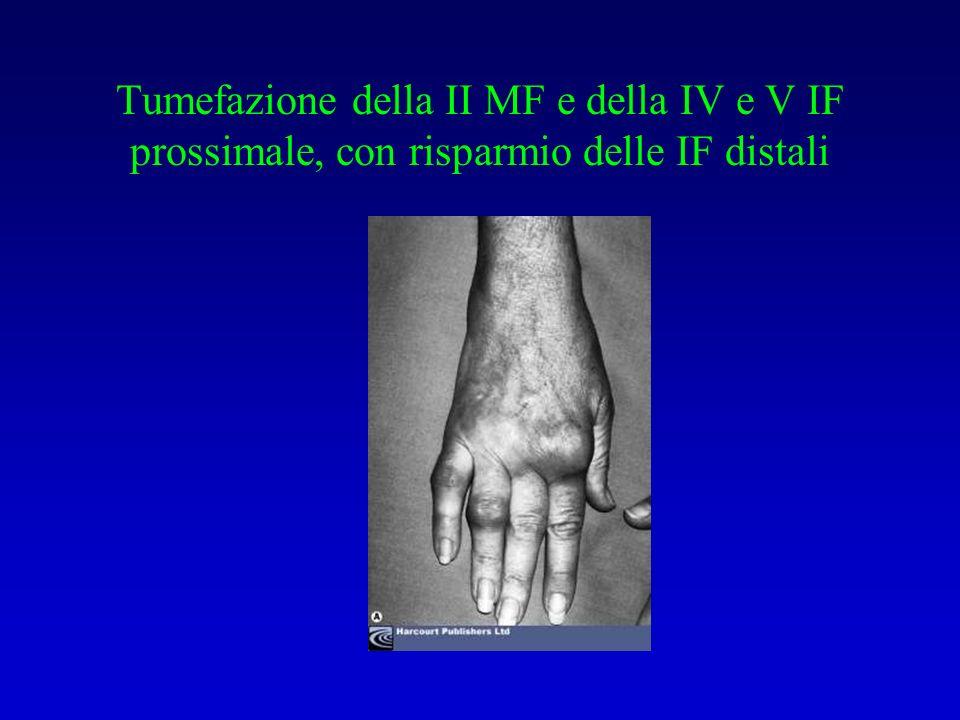 Tumefazione della II MF e della IV e V IF prossimale, con risparmio delle IF distali