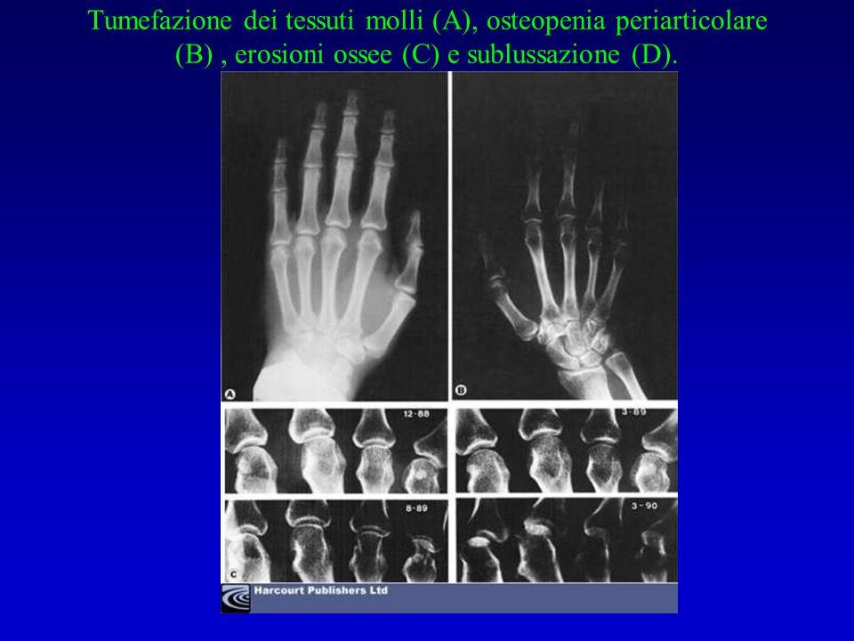 Tumefazione dei tessuti molli (A), osteopenia periarticolare (B), erosioni ossee (C) e sublussazione (D).