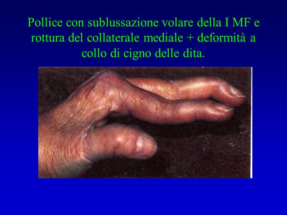 Pollice con sublussazione volare della I MF e rottura del collaterale mediale + deformità a collo di cigno delle dita.