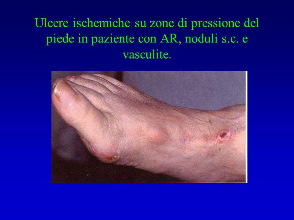 Ulcere ischemiche su zone di pressione del piede in paziente con AR, noduli s.c. e vasculite.