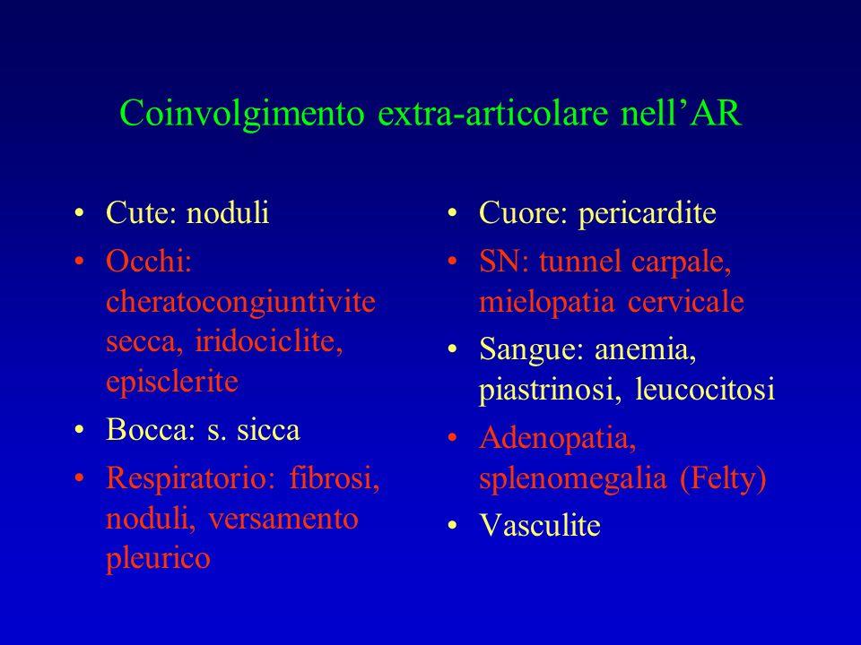 Coinvolgimento extra-articolare nellAR Cute: noduli Occhi: cheratocongiuntivite secca, iridociclite, episclerite Bocca: s. sicca Respiratorio: fibrosi
