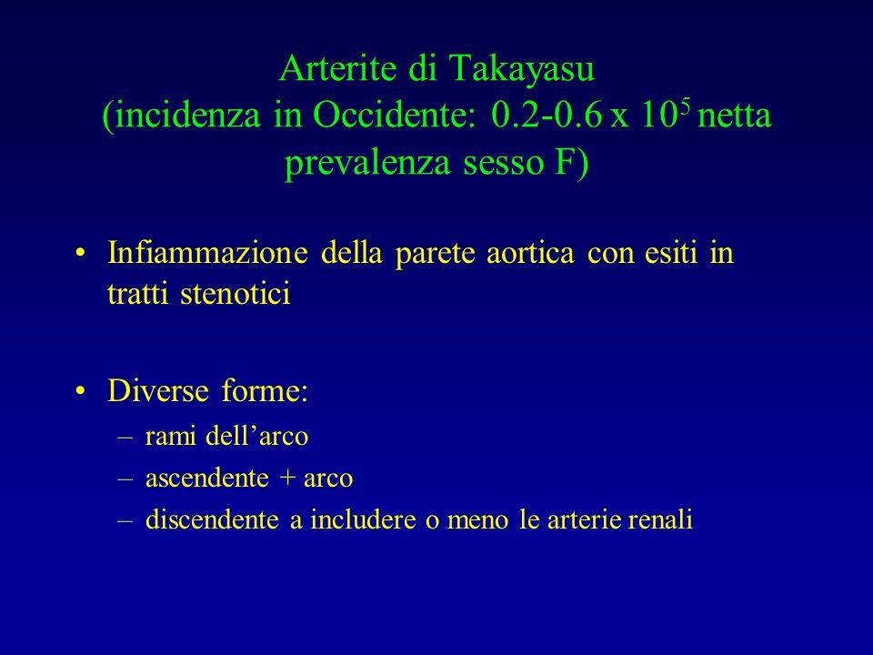 Arterite di Takayasu (incidenza in Occidente: 0.2-0.6 x 10 5 netta prevalenza sesso F) Infiammazione della parete aortica con esiti in tratti stenotic