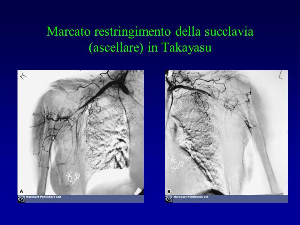 Marcato restringimento della succlavia (ascellare) in Takayasu