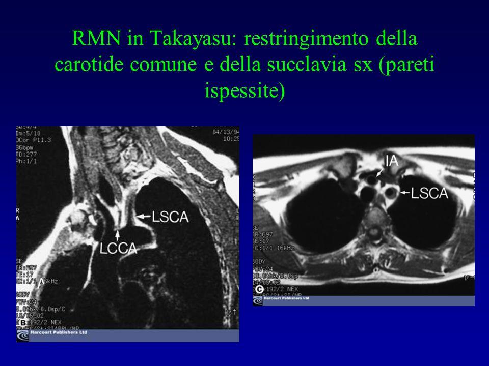 RMN in Takayasu: restringimento della carotide comune e della succlavia sx (pareti ispessite)