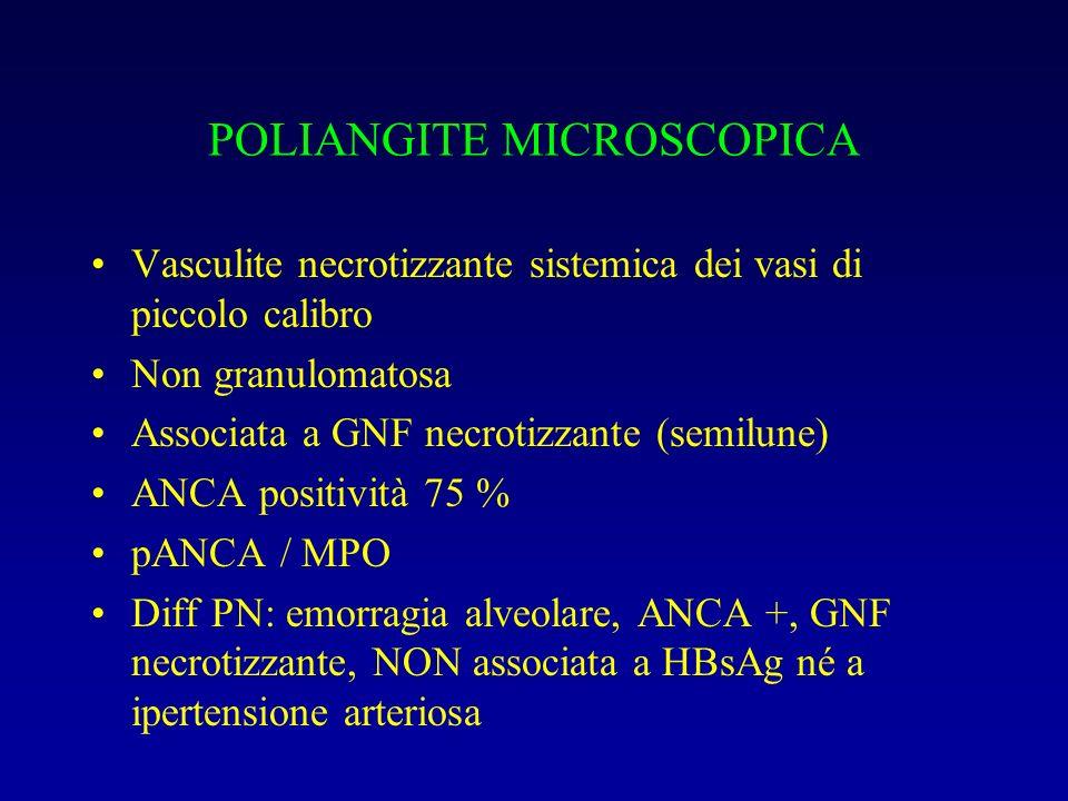 POLIANGITE MICROSCOPICA Vasculite necrotizzante sistemica dei vasi di piccolo calibro Non granulomatosa Associata a GNF necrotizzante (semilune) ANCA