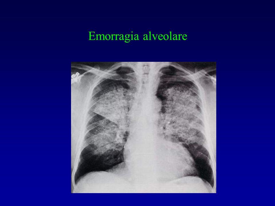 Emorragia alveolare