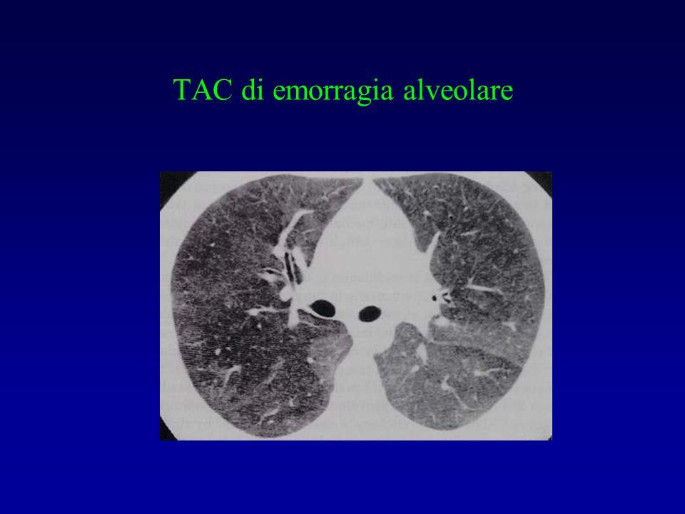 TAC di emorragia alveolare