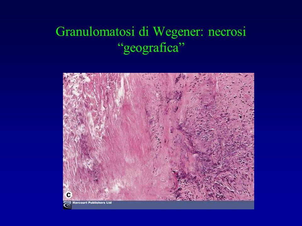 Granulomatosi di Wegener: necrosi geografica