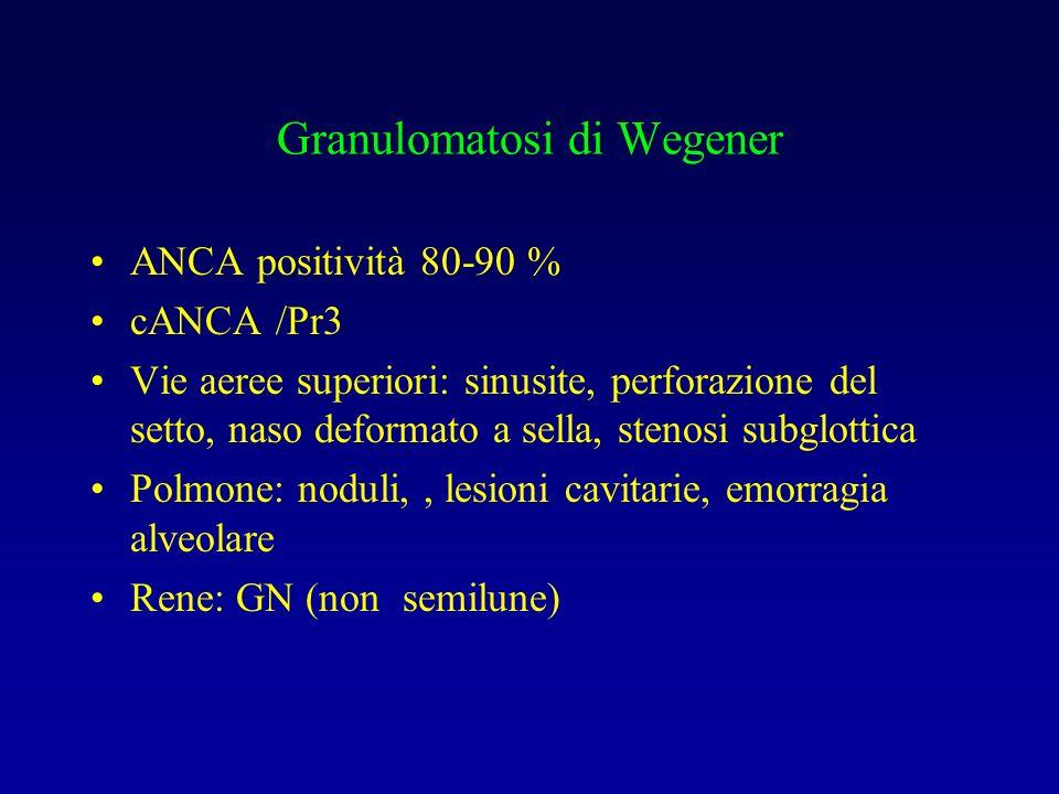 Granulomatosi di Wegener ANCA positività 80-90 % cANCA /Pr3 Vie aeree superiori: sinusite, perforazione del setto, naso deformato a sella, stenosi sub