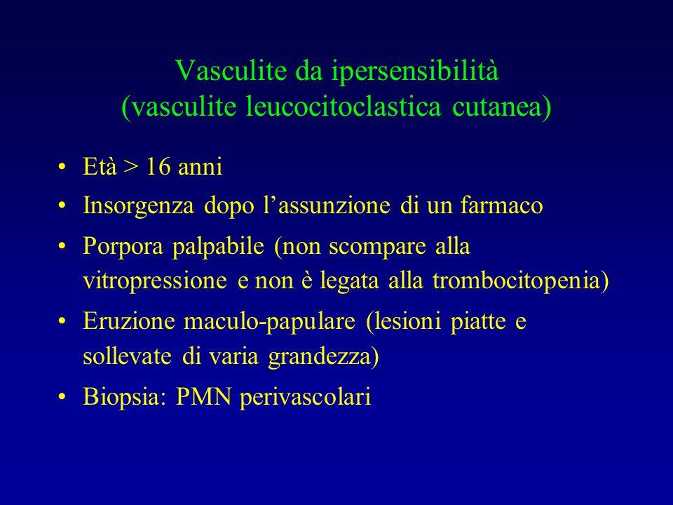 Vasculite da ipersensibilità (vasculite leucocitoclastica cutanea) Età > 16 anni Insorgenza dopo lassunzione di un farmaco Porpora palpabile (non scom