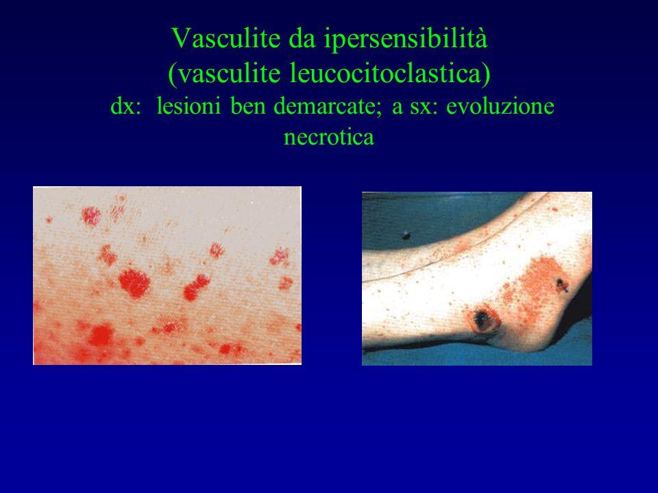 Vasculite da ipersensibilità (vasculite leucocitoclastica) dx: lesioni ben demarcate; a sx: evoluzione necrotica