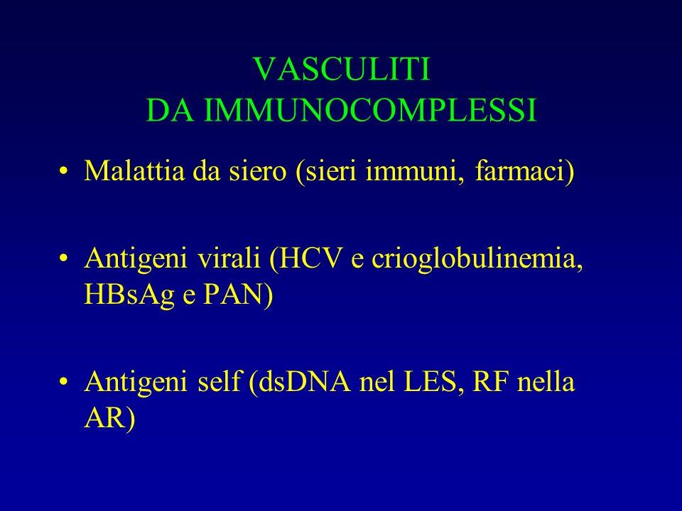 VASCULITI DA IMMUNOCOMPLESSI Malattia da siero (sieri immuni, farmaci) Antigeni virali (HCV e crioglobulinemia, HBsAg e PAN) Antigeni self (dsDNA nel