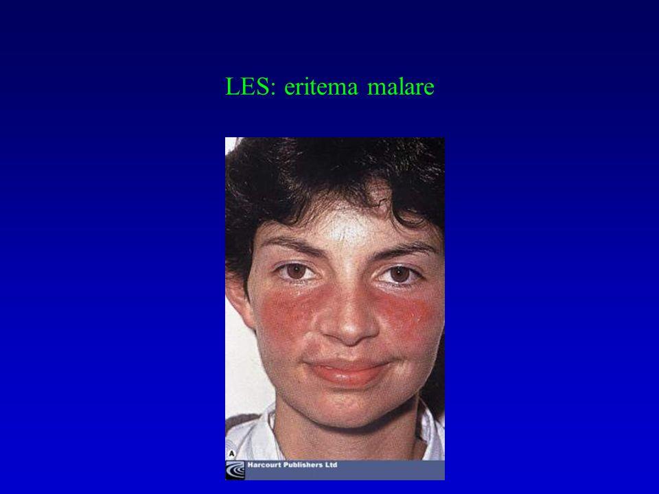 Biopsia di una ghiandola salivare minore in SS.