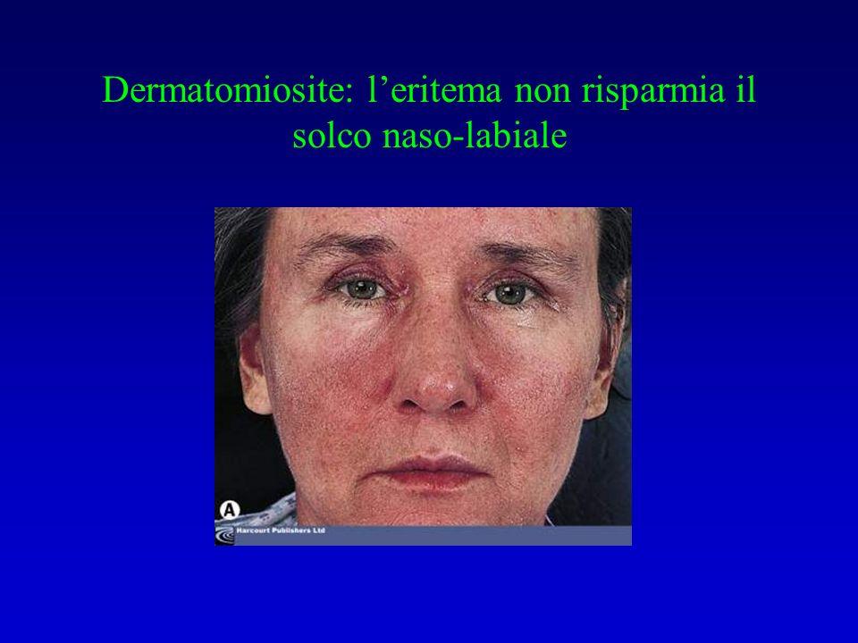 Dermatomiosite: leritema non risparmia il solco naso-labiale