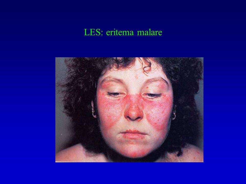 Autoanticorpi nel LES e correlazioni cliniche dsDNA: specifico, correla con attività di malattia istoni: LES e LES da farmaci Sm (specifico, poco sensibile) SS-A / SS-B : fotosensibilità, lupus neonatale, Sjogren LAC e ACA ( 2- GPI): trombosi, aborti ricorrenti, deficit neurologici focali, livedo reticularis, piastrinopenia)