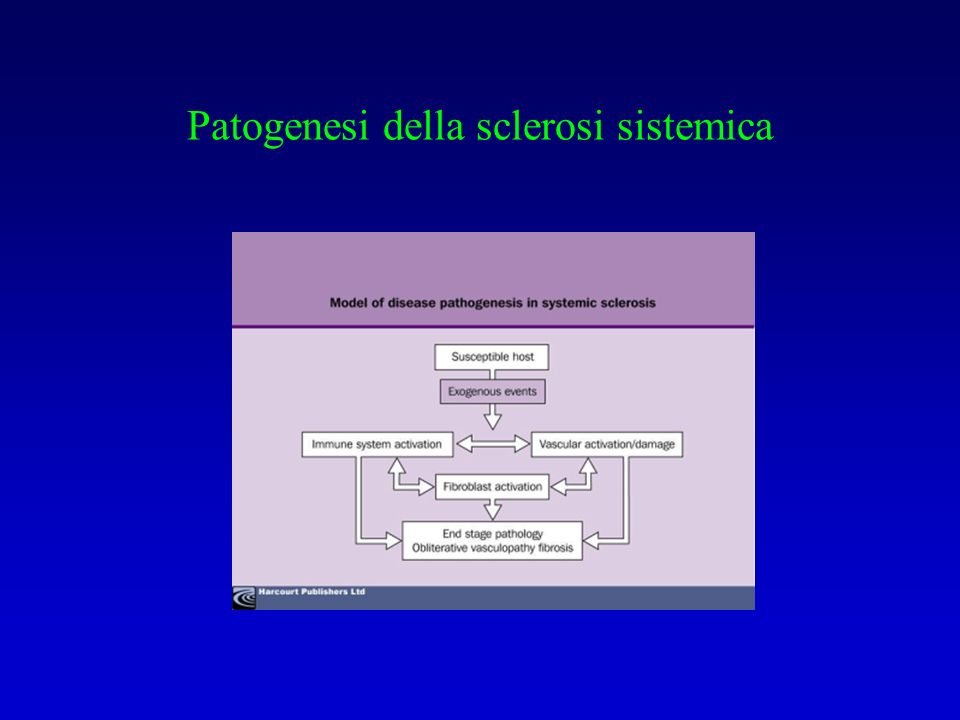 Patogenesi della sclerosi sistemica