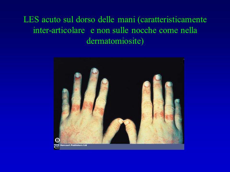 Tumefazione della mano in donna con SS diffusa (da 6 mesi)