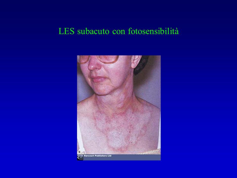 Biopsia polmonare in sclerosi sistemica: fibrosi interstiziale, con aspetto a nido dape