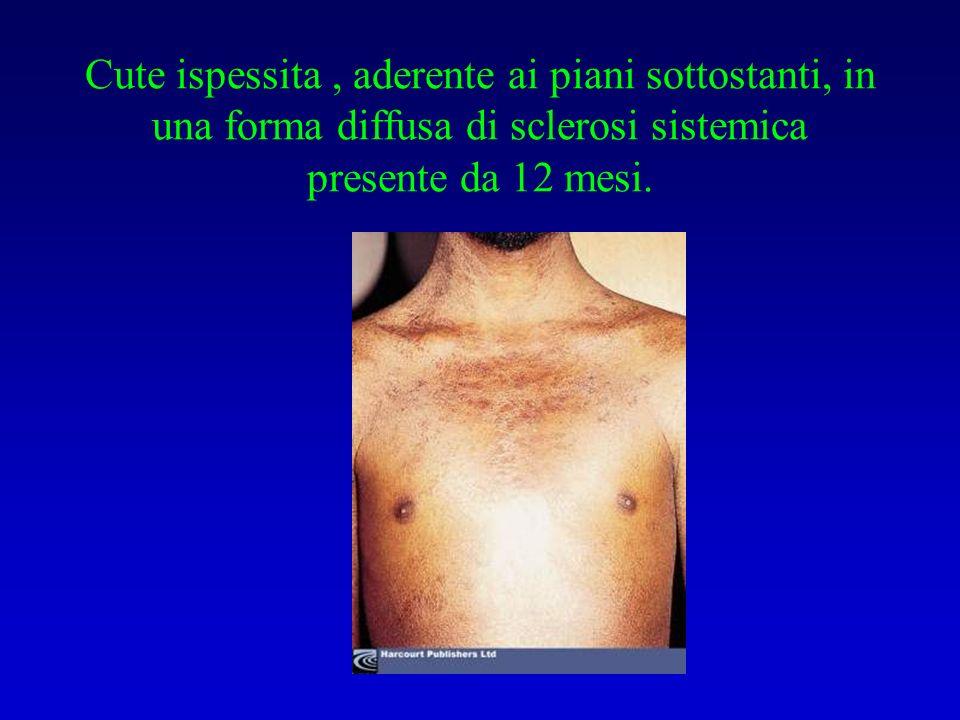 Cute ispessita, aderente ai piani sottostanti, in una forma diffusa di sclerosi sistemica presente da 12 mesi.