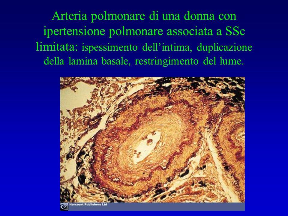 Arteria polmonare di una donna con ipertensione polmonare associata a SSc limitata: ispessimento dellintima, duplicazione della lamina basale, restringimento del lume.