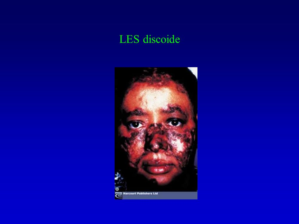 LES discoide (alopecia permanente cicatriziale)