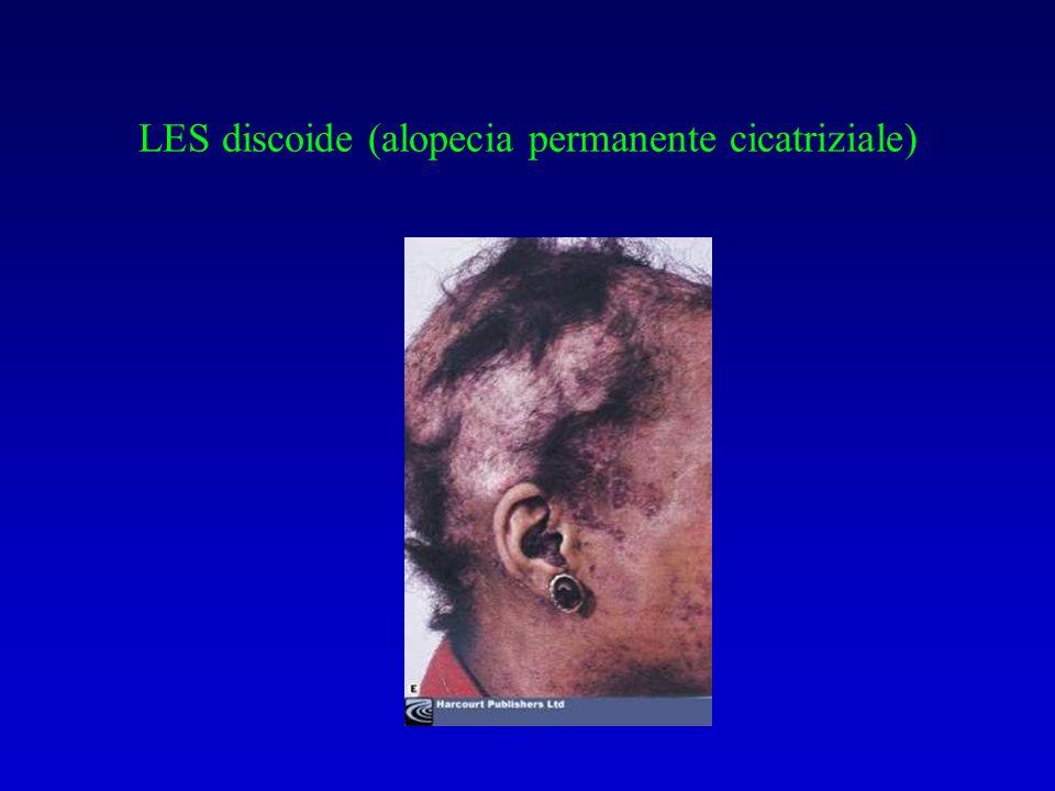 Classificazione istologica della nefrite lupica (ClassiWHO) I Normale II Nefrite mesangiale (deposito mesangiale Ig) III GNF proliferativa focale ( cellularità < 50 % dei glomeruli, in pattern segmentario; depositi di IC mesangio e anse capillari) IV GNF proliferativa diffusa V Ispessimento generalizzato delle anse capillari (IC intramembranosi e subepiteliali)