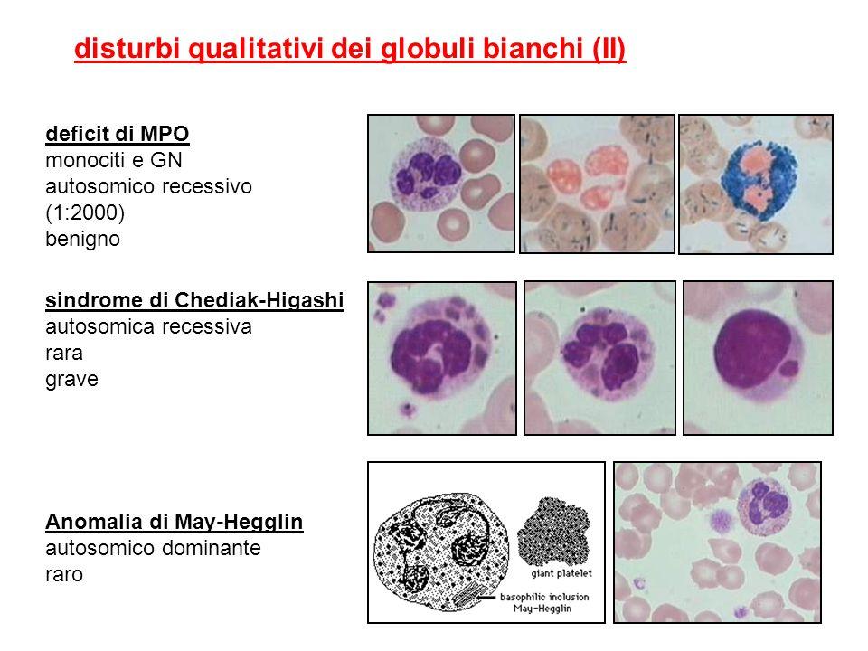 sindrome di Chediak-Higashi autosomica recessiva rara grave disturbi qualitativi dei globuli bianchi (II) deficit di MPO monociti e GN autosomico rece