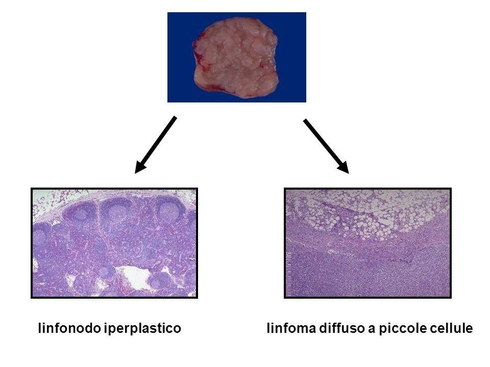 linfonodo iperplastico linfoma diffuso a piccole cellule