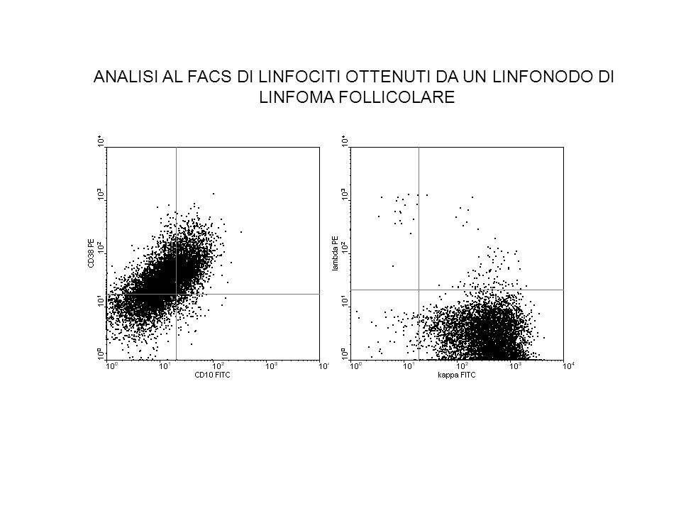 ANALISI AL FACS DI LINFOCITI OTTENUTI DA UN LINFONODO DI LINFOMA FOLLICOLARE