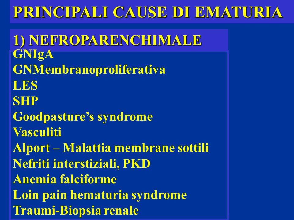 PRINCIPALI CAUSE DI EMATURIA 1) NEFROPARENCHIMALE GNIgA GNMembranoproliferativa LES SHP Goodpastures syndrome Vasculiti Alport – Malattia membrane sot