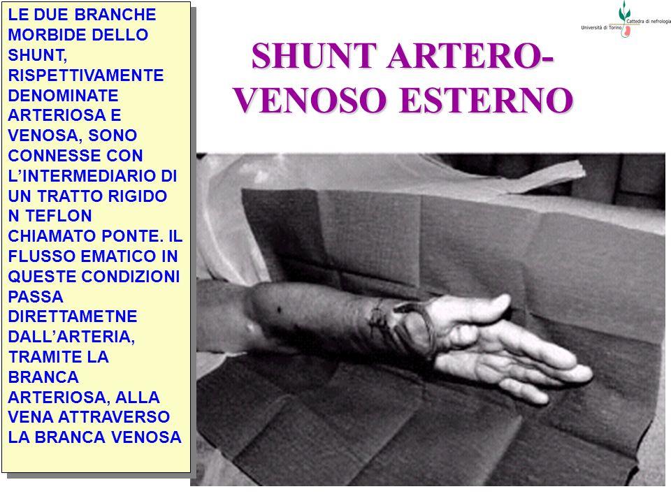 SHUNT ARTERO- VENOSO ESTERNO LE DUE BRANCHE MORBIDE DELLO SHUNT, RISPETTIVAMENTE DENOMINATE ARTERIOSA E VENOSA, SONO CONNESSE CON LINTERMEDIARIO DI UN