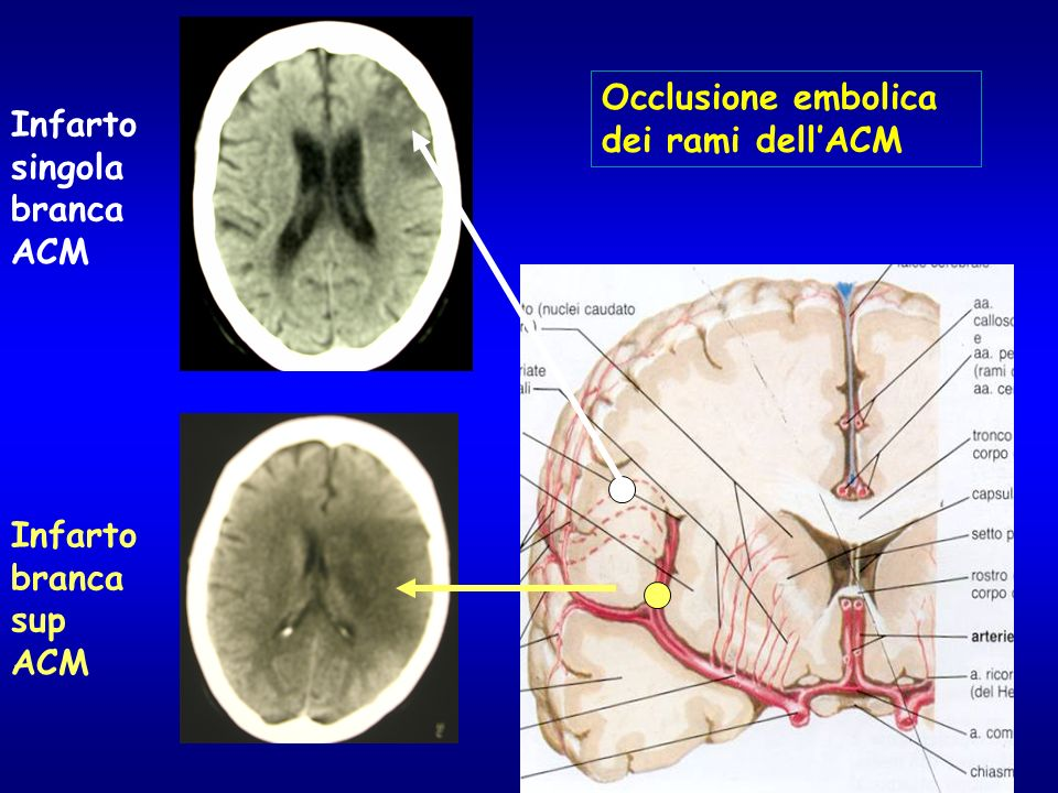 Occlusione embolica dei rami dellACM Infarto branca sup ACM Infarto singola branca ACM