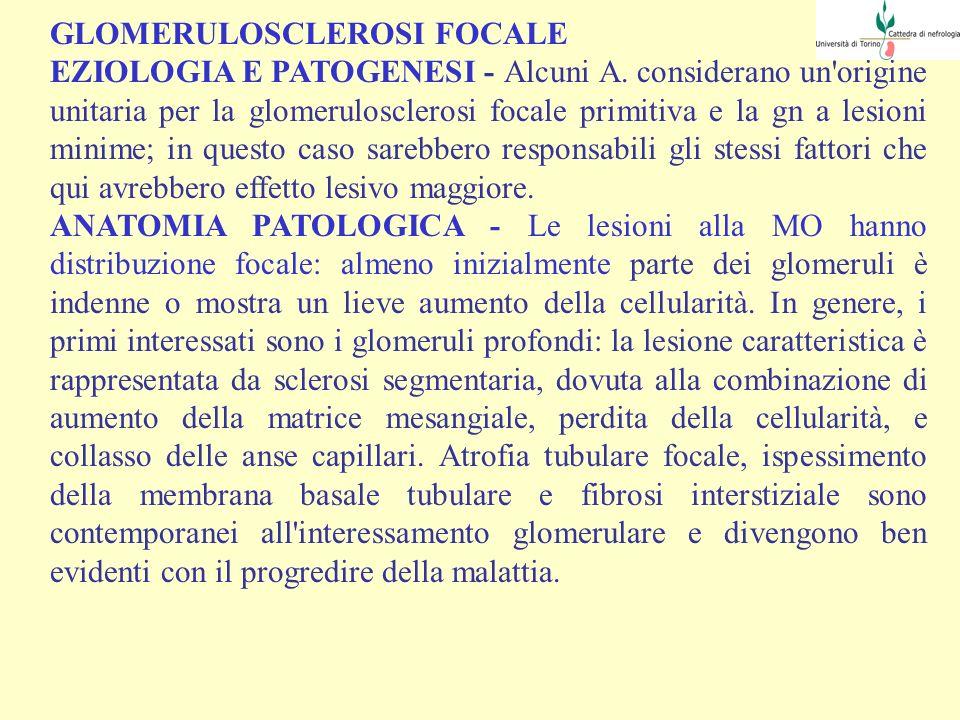 GLOMERULOSCLEROSI FOCALE EZIOLOGIA E PATOGENESI - Alcuni A. considerano un'origine unitaria per la glomerulosclerosi focale primitiva e la gn a lesion