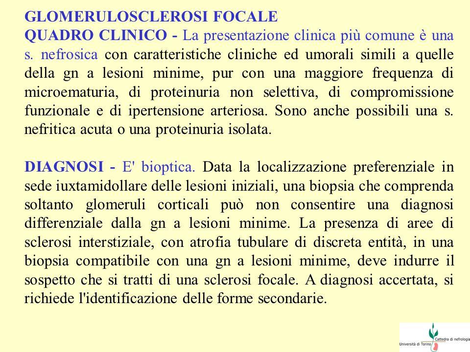 GLOMERULOSCLEROSI FOCALE QUADRO CLINICO - La presentazione clinica più comune è una s. nefrosica con caratteristiche cliniche ed umorali simili a quel